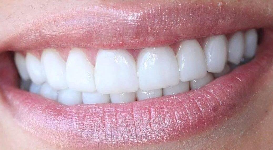 виниры на зубы в митино